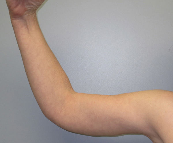 After Photo of Arm Lift performed at SOMC Plastic Surgery