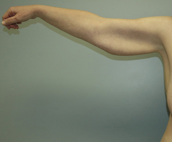 Before Photo of Arm Lift performed at SOMC Plastic Surgery