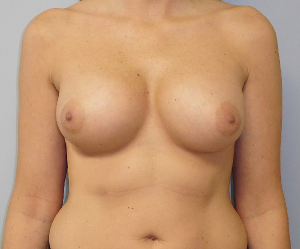 After photo of breast augmentation performed at SOMC Plastic Surgery
