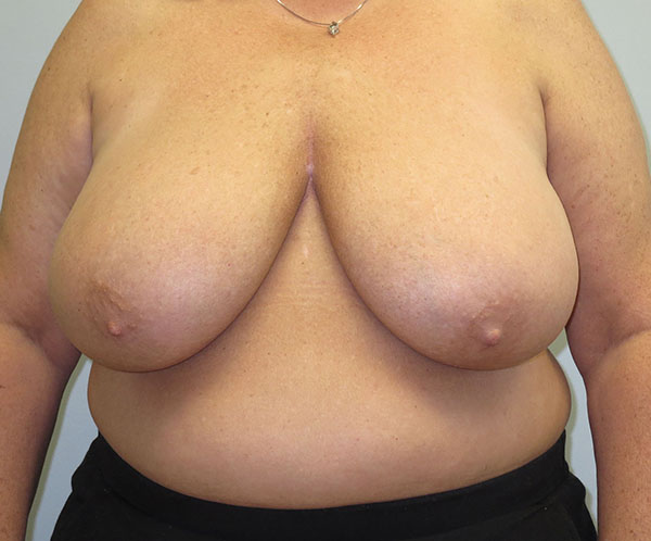 Before photo of breast reduction performed at SOMC Plastic Surgery