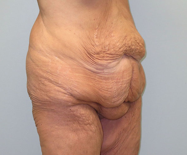 Before photo of vertical abdominoplasty performed at SOMC Plastic Surgery