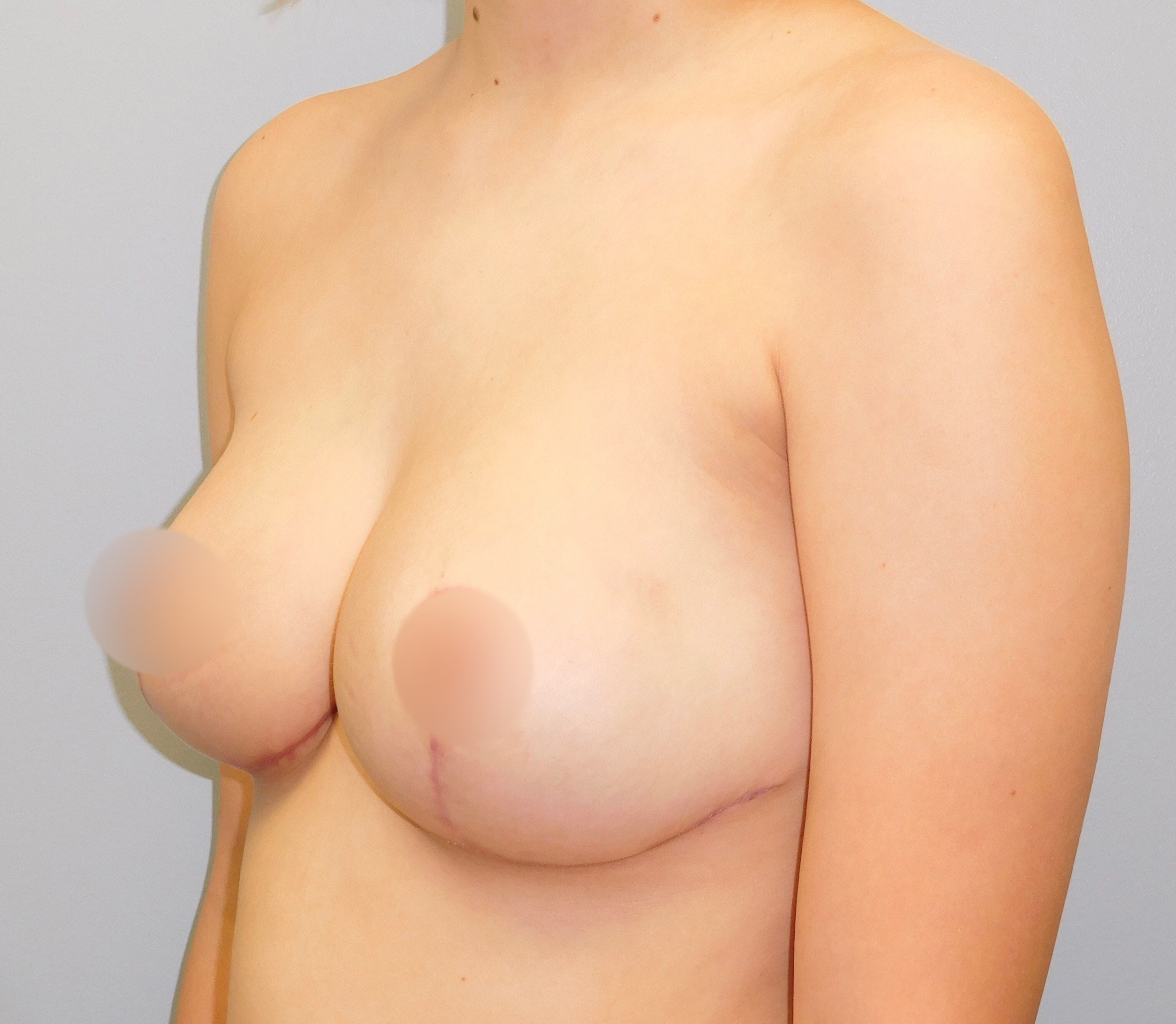After photo of breast reduction performed at SOMC Plastic Surgery