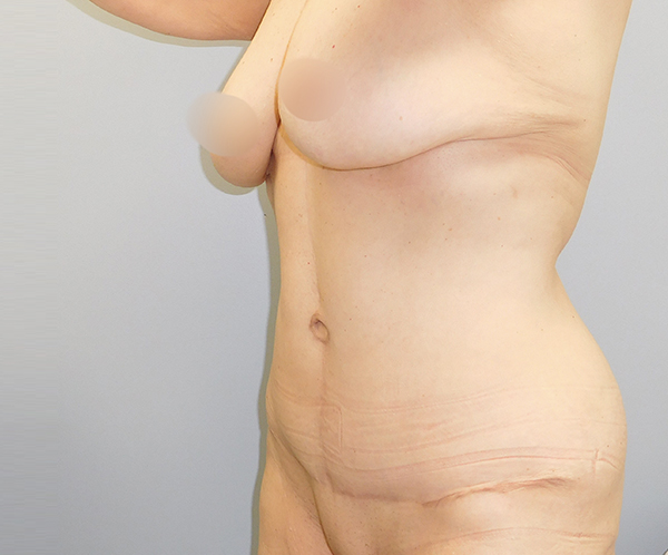 After photo of vertical abdominoplasty performed at SOMC Plastic Surgery