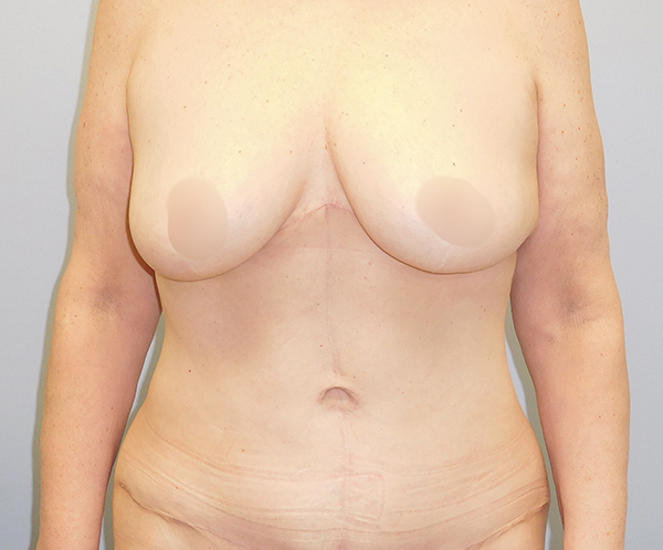 After photo of tummy tuck performed at SOMC Plastic Surgery