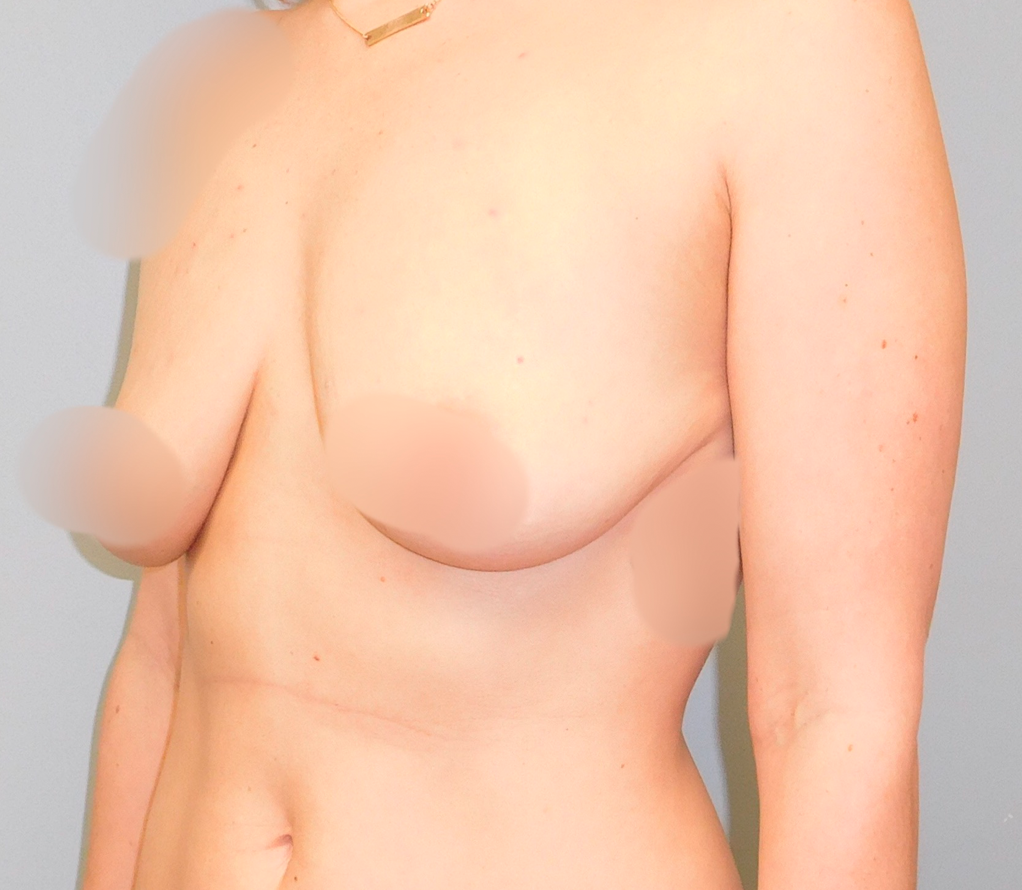 Before photo of breast augmentation performed at SOMC Plastic Surgery