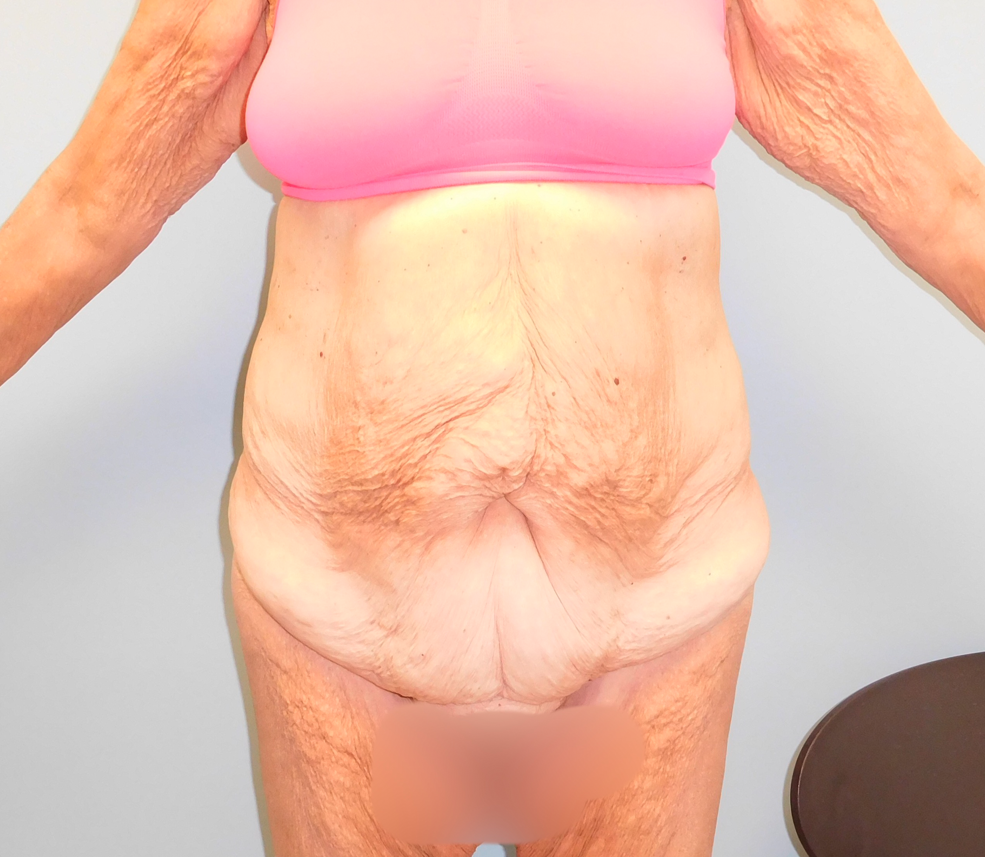 Before photo of tummy tuck performed at SOMC Plastic Surgery