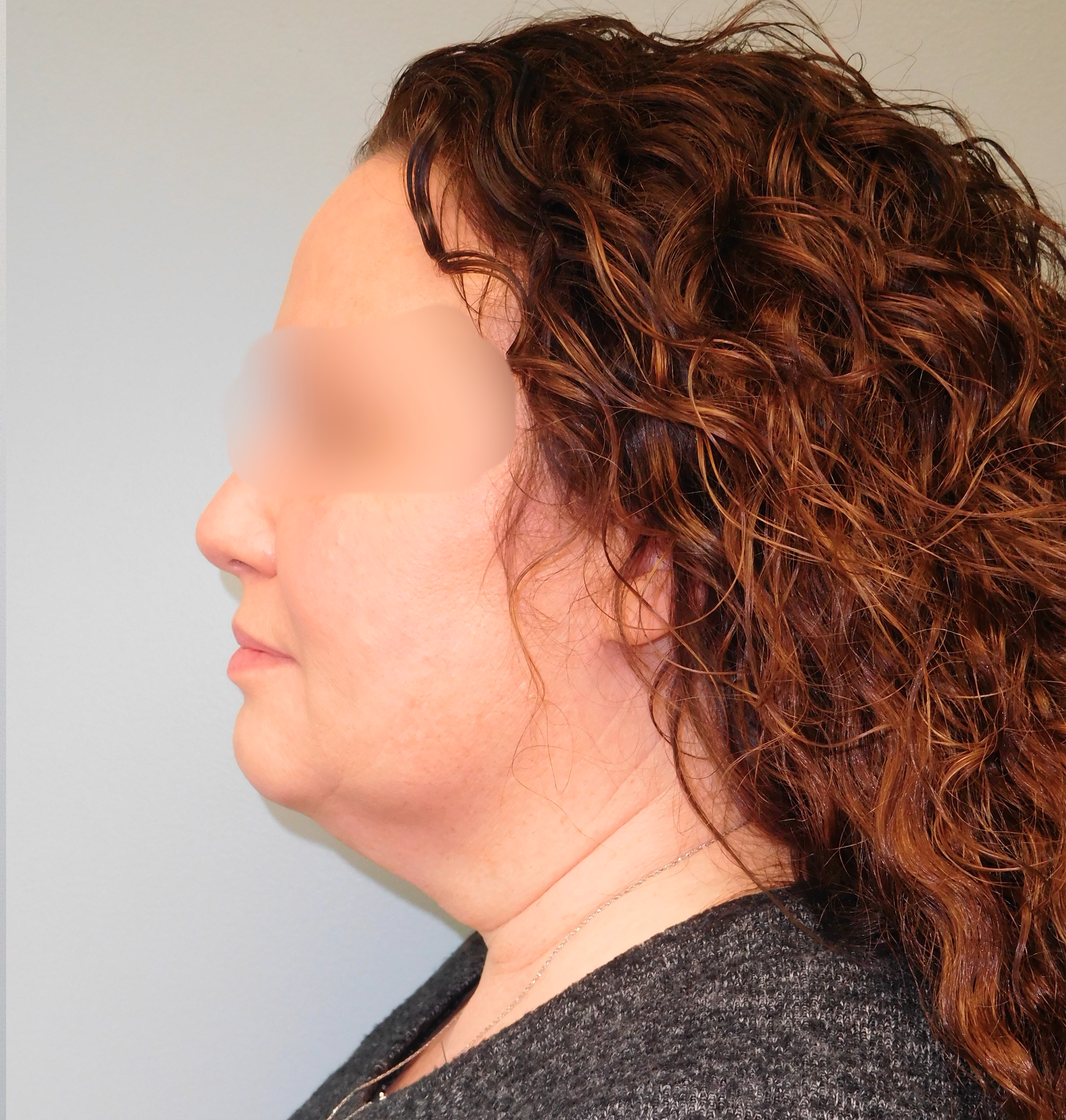 This patient underwent a full face and necklift performed at SOMC Plastic Surgery